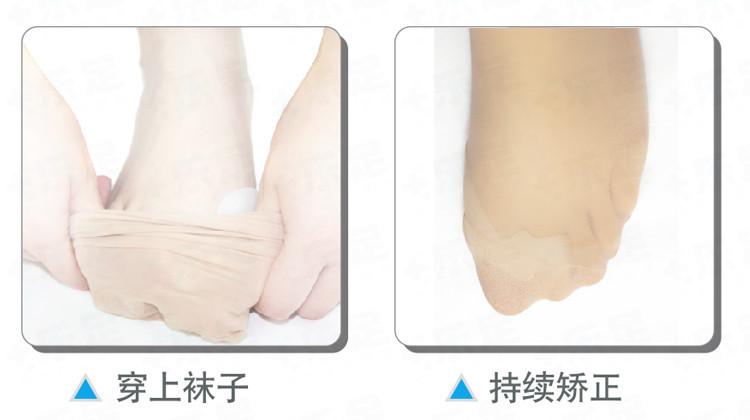 Genuine  special hallux valgus bicyclic thumb orthopedic braces to correct daily silicone toe big bone