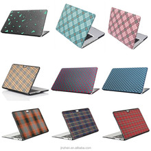 """patterm hard case and leather Hard Case Cover For Macbook Air 13.3"""" 11.6"""" Pro 13.3"""" 15.4""""& Retina"""