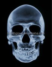 x-ray film fuji medical dry film DI-HT Film