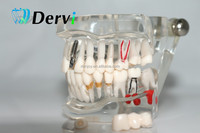 Wholesale Product Cheapest Adult Typodont Demonstration Dental Standard Teeth Model #1401