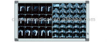 Medical X-ray Equipments & Accessories Properties Dental/Medical x ray film viewer