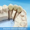 Dental Co-Cr porcelain bonded to metal crowns