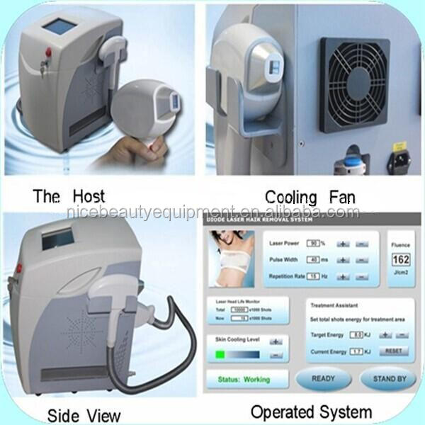 Syst me d 39 pilation au laser diode laser trialma 808nm for Appareil epilation laser maison