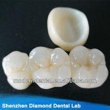 supply Non Porcelian dental Bonded Crown and Bridge