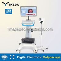 electronic colposcope software/3d color ultrasound system