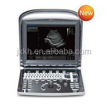 CE approved Portable Chison Ultrasound Scanner with 3.5Mhz multi-frequency convex probe ECO1