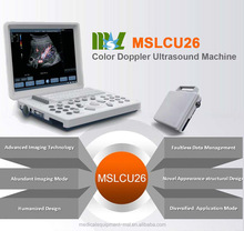 2015 hot-selling color doppler echography machine portable in Guangzhou (MSLCU26)