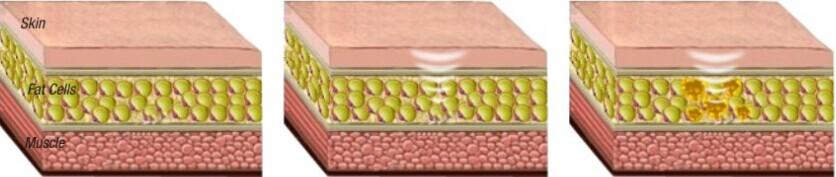 Liposonix HIFU cho khuôn mặt và cơ thể giảm béo máy