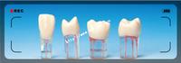 dental study model / practice model for endodontic/single tooth