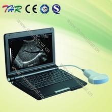 THR-LT003 Full Digital Laptop Ultrasound scanner