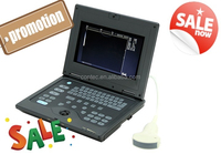 ON SALE! Laptop Doppler medical Ultrasound Scanner-CE certified ultrasound machine ultrasonic doppler