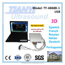 human or veterinary usb ultrasound probe for laptop( factory sell)