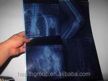 Plastic film/ Medical film / X Ray film