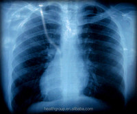 Medical kodak laser DVB film/X ray film manufacturer/Film medical