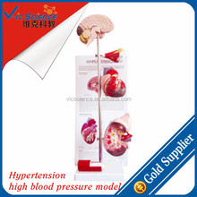 Hypertension high blood pressure model