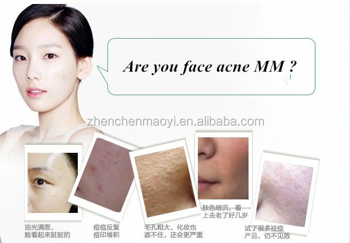 Comme guérir les taches de pigment sur la peau