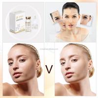 Happy+ VC Acne whitening elastic skin serum/bio essence anti acne serum