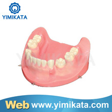 Promotion Yimikata One-stop Online store Teaching Model Long Warranty Portable Implant practice model price