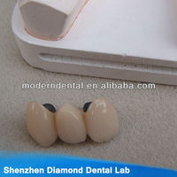 Supply Dental PFM ceramic alloy teeth and crowns
