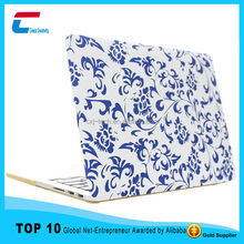2015 New arrival custom shell case for mabook pro,case for macbook pro laptop,for mabook pro custom case