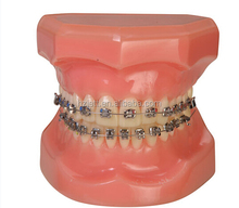 Jet Brand dental brackets price orthodontic bracket standard