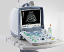Department of gynecology medical device ultrasound scanner for baby
