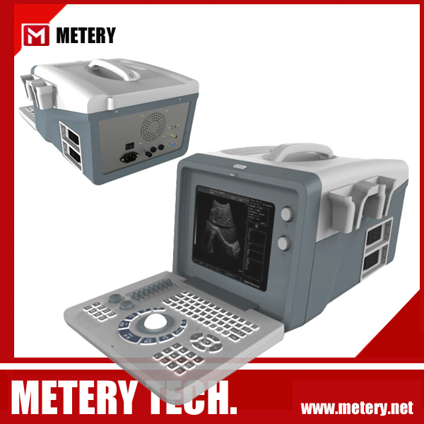 buy portable ultrasound machine