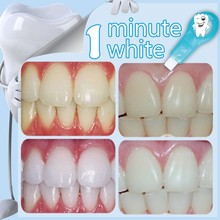 Private Label Teeth Cleaning Cost, Best Whitening Product
