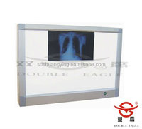 Best selling Double linkage x-ray film Viewer with CE