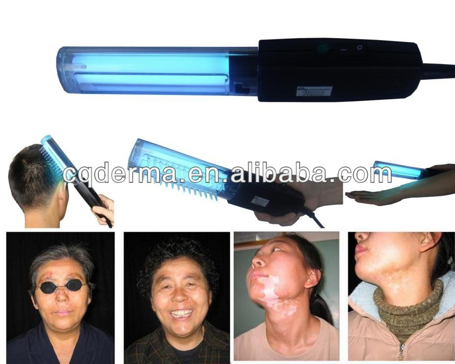 Narrowband UVB Phototherapy Lamp 311 nm with LCD Timer for Psoriasis, Vitiligo, Eczema and other skin disea 3