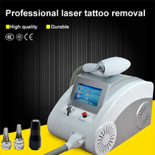 how does laser tattoo removal work/q switch laser tattoo removal/wrecking balm tattoo removal