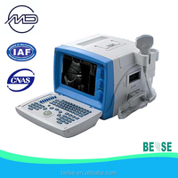 laptop B mode ultrasound scanner