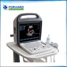 Economic stylish trolley doppler ultrasound scan