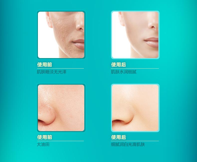 Face гиалуроновая кислота