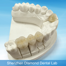 Factory price Dental porcelain false teeth supply