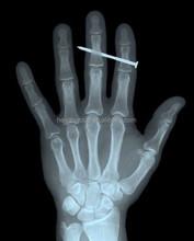 China wholesale medical scrap x-ray film for sale/Agfa Drystar DT2B dry film/Kodak,Konica,Fuji,Agfa/MRI/Medical dry films denta
