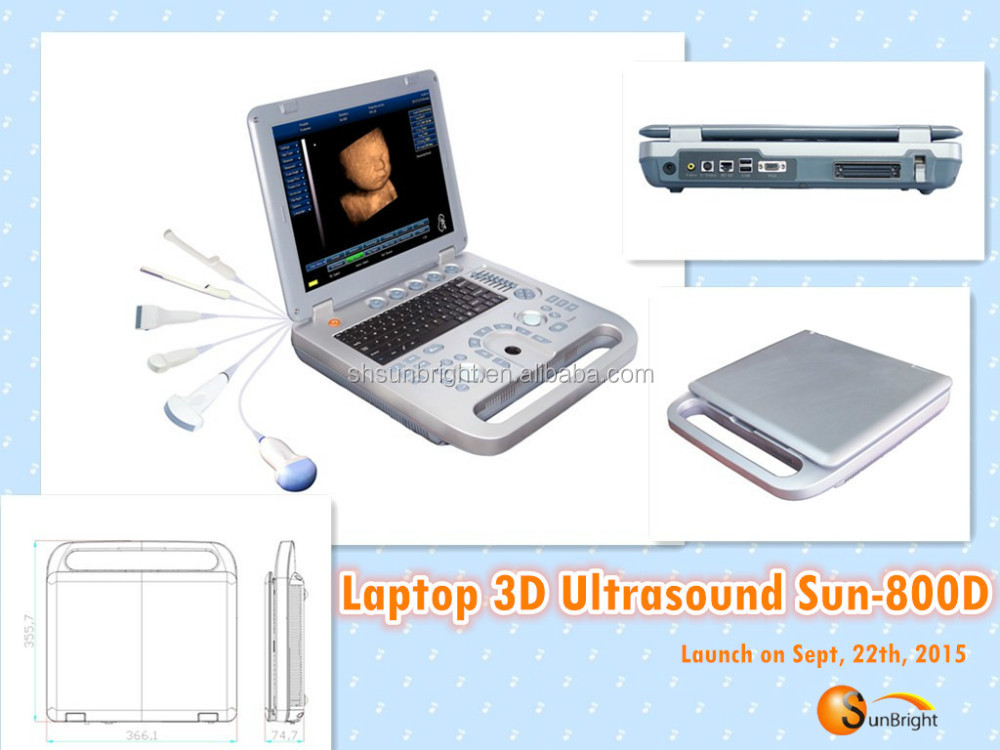 portable ultrasound us pro 2000 manual