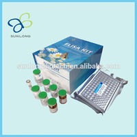 Human Interleukin-2 receptor,IL-2R ELISA kit