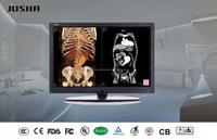 52(JUSHA-C42)falcon portable digital x ray,used cr x-ray