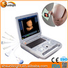 best selling time 3d 4d portable ultrasound/4d ultrasound