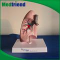 Mfm024 venta al por mayor In China humano pulmones modelo