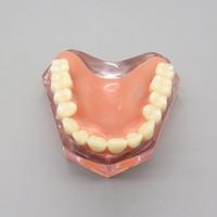 dental implant model dental teeth study model dental study model