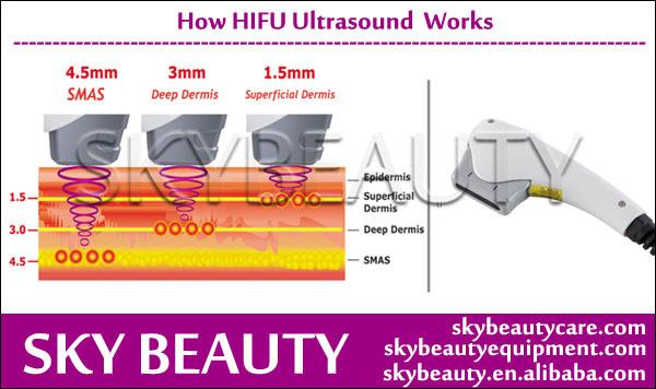 Hifu Focused Ultrasound Machine 13mm Hifu Ultrasound Machine View