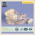 Dental implant modelo de resina modelo de los dientes con 2 clavos BIX-L1064