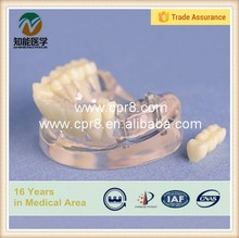 Dental implant model resin teeth model with 2 nails BIX-L1064