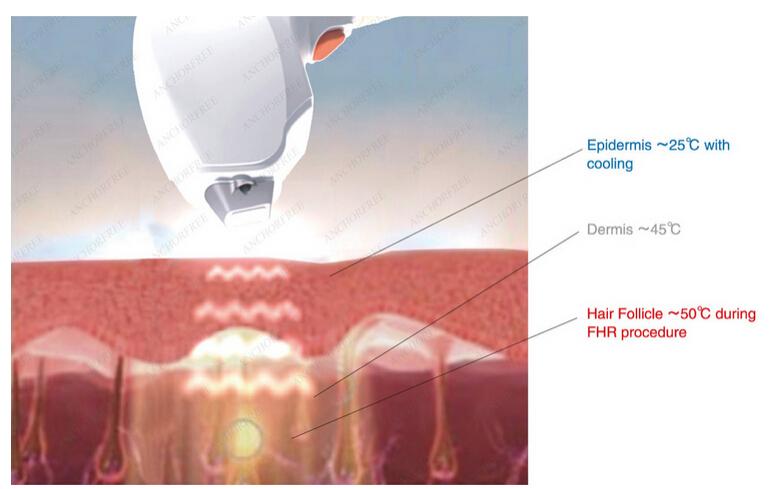 Удаление волос диодным лазером в москве