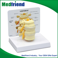 MFM011 New Sytle Low Cost Lumbar Nerves Model