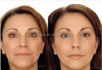buy injectable dermal fillers ,Molecular eliminate wrinkles hyaluronic acid filler