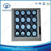 mri scanner for sale medical x ray film viewer wholesale vein viewer