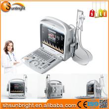 Sun-906W Portable ultrasound machine with color doppler